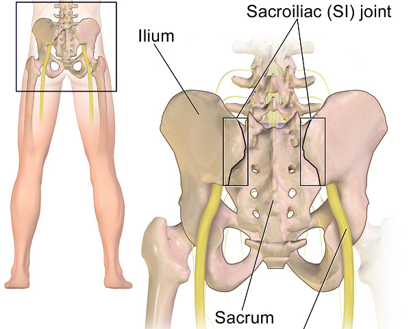 SI Joint Pain & Fusions