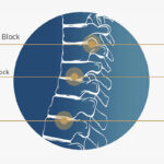 Back Pain Relief Treatments